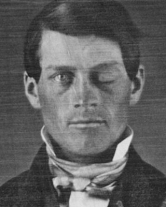 Phineas_Gage_Cased_Daguerreotype_WilgusPhoto2008-12-19_CroppedHeadOnly_EnhancedRetouched_Color
